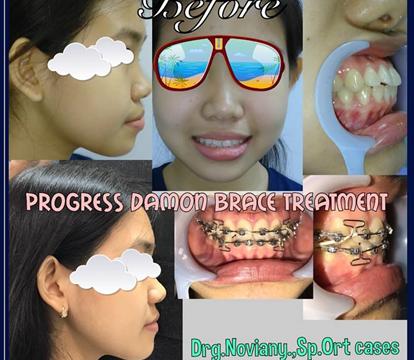 Foto Sebelum dan Sesudah Memakai Kawat Gigi