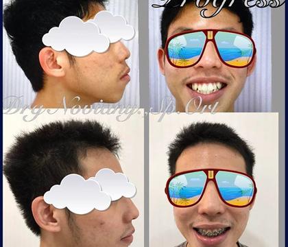 Foto Sebelum dan Sesudah Memakai Kawat Gigi (2)