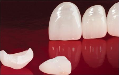 Apa itu Dental Veneer?